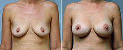 breast-augmentation-6617a-conway-sm