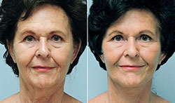 facelift-neck-lift-6238a-conway-sm