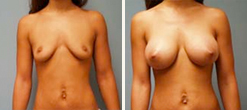 mcdonough-breast-augmentation-2